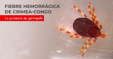 fiebre_hemorrgica_Crimea-Congo